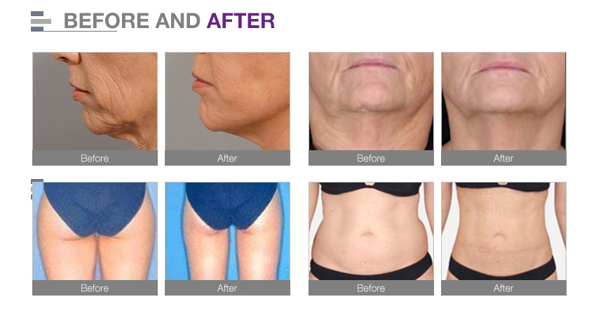 Hifu fat reduction face lifting 2 in 1 body and face